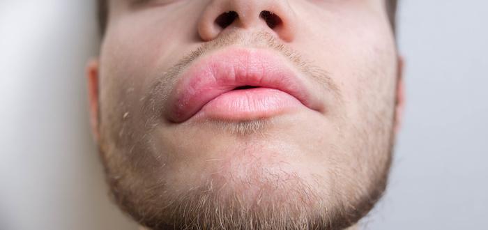 Anjiyoödem dudak, el, kol, genital bölge, cinsel organlarda, ayak ve bacakta görülen şişmelerdir.