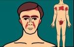 Seboreik Dermatit (Egzama) Tedavi Yöntemleri