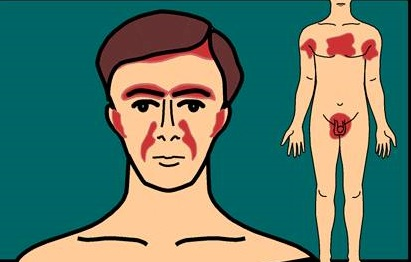 seboreik-dermatit-tedavisi-yontemleri-dogal