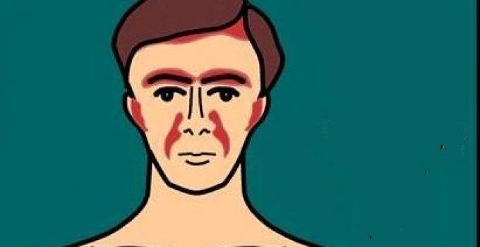 seboreik dermatit tedavisi