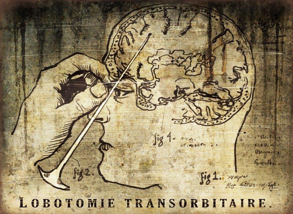 Tarihte tıbbi tedavide lobotomi